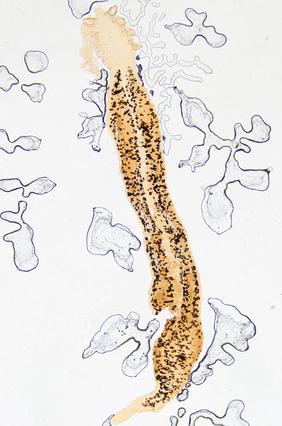Hakenwurm unter dem Mikroskop